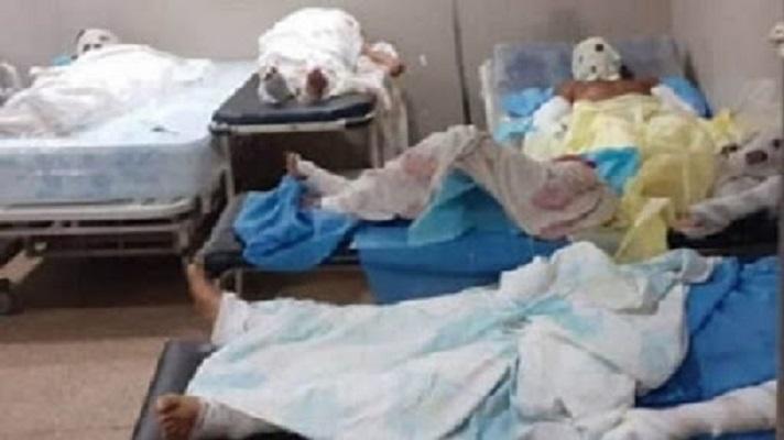 Los aires acondicionados de la Unidad de Cuidados Intensivos (UCI) del Hospital Manuel Núñez Tovar de Maturín dejaron de funcionar. Allí se encuentran dos pacientes quemados en la explosión en Monagas.